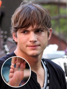 Ashton Kutcher Webbed Toes