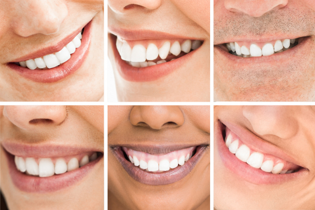 The Secrets to a Beautiful Smile