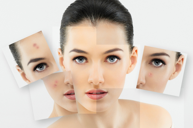 Fight Acne with a Healthy Diet