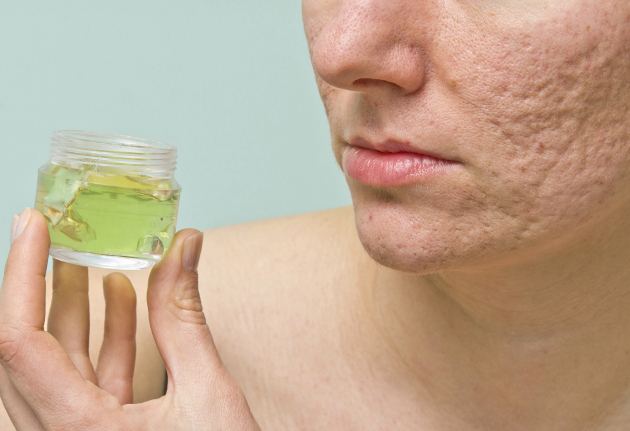 Homemade Acne Scar Treatments