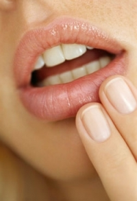 What are Cold Sores and How to Treat Them