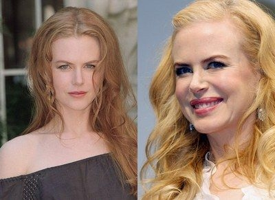 Nicole Kidman has never publically admitted to indulging in a little botox or collagen, but the photos speak for themselves.