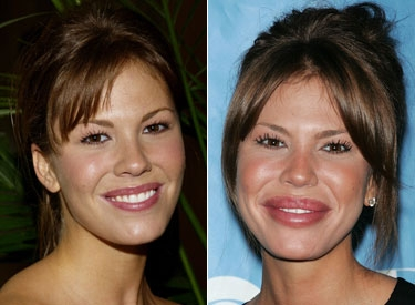 Nikki Cox with her new pair of enhanced lips.