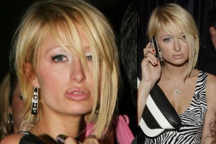 Paris Hilton has done what is one the most common cosmetic procedures after breast implants and that is the lip augmentation.