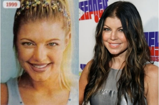 Fergie is suspected of getting her nose done because of the big difference between her nose in the present and when she was a kid. Her nose use to be much more wider and flat, while now it is smaller, well defined and with a little pinch.<br />