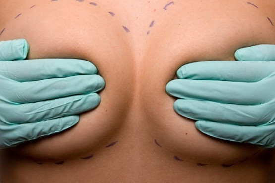 The Side Effects of Breast Implants