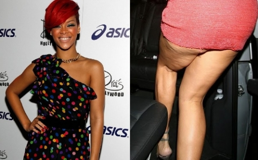 <br />The music diva who made curvy really sexy and hot seems to have problems with cellulite. Rihanna indeed is a real style icon and loves to show off her feminine features however it seems that paparazzi are there to spot some of the less flattering postures which might ruin her reputation as a beauty idol. <br /><br />