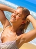 How to Prevent Summer Acne Breakouts