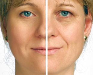 Get rid of blemishes and acne scars, wrinkles or other imperfections with laser skin resurfacing. Find out more about skin resurfacing, from techniques to costs.