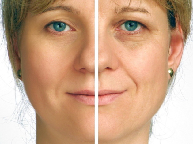 Wrinkle Correction With Laser Skin Resurfacing