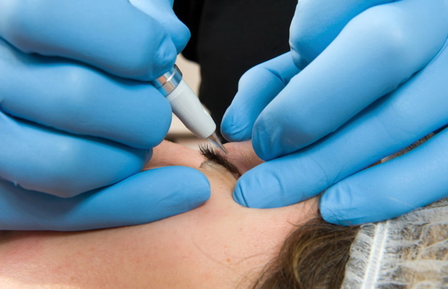 Permanent Makeup Eyeliner Procedure