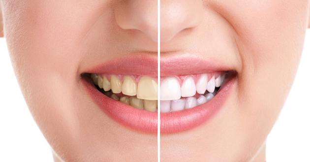 How to Get White Teeth Naturally - Do's and Don'ts