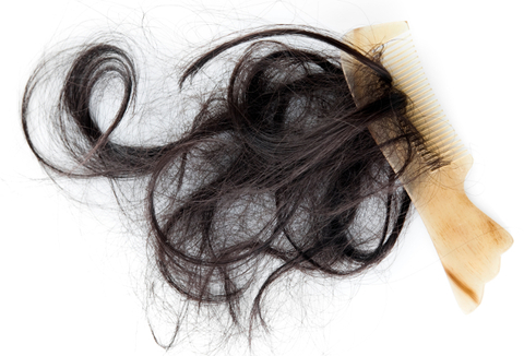 Best Natural Remedies for Thinning Hair
