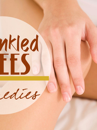 How to Get Rid of Wrinkled Knees