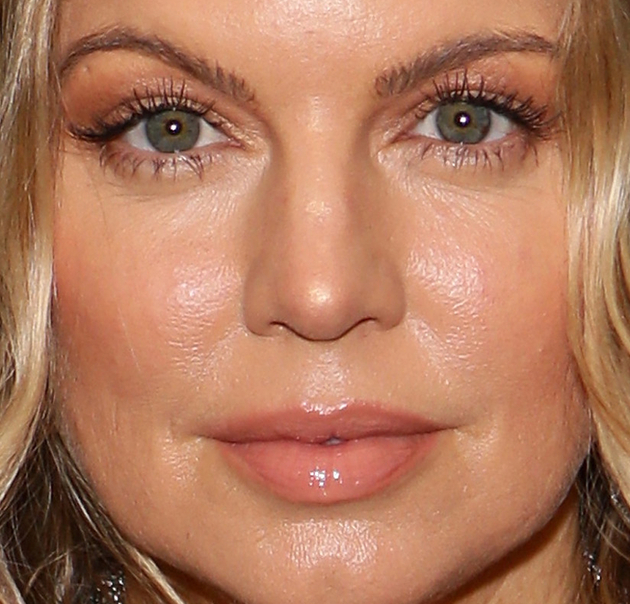 12 Ugly Celebrities - Pictures - Celebrity acne scars ...