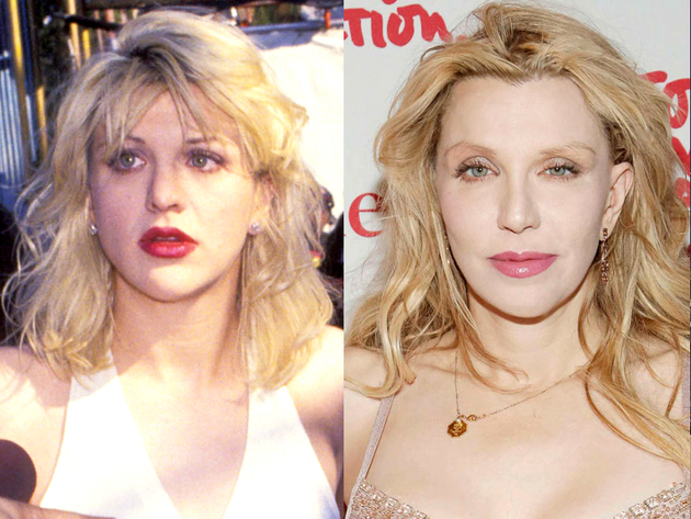 Courtney Love After Plastic Surgery
