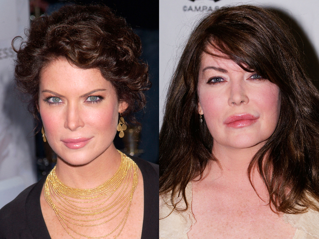 Lara Flynn Boyle After Plastic Surgery