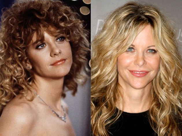 Meg Ryan After Plastic Surgery