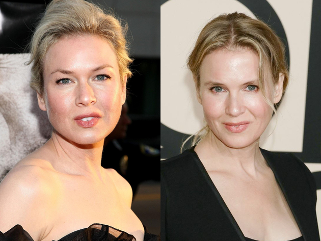 Renee Zellweger  After Plastic Surgery