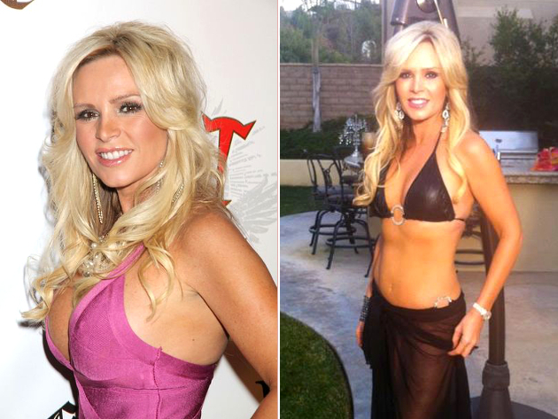 Tamra Judge Barney Breast Implants