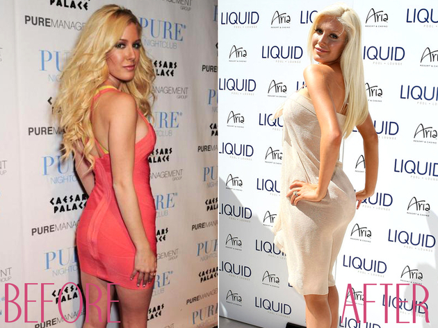 Heidi Montag Before Butt Implants