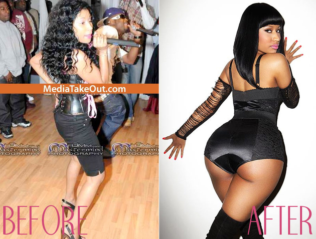 Nicki Minaj Before Butt Implants