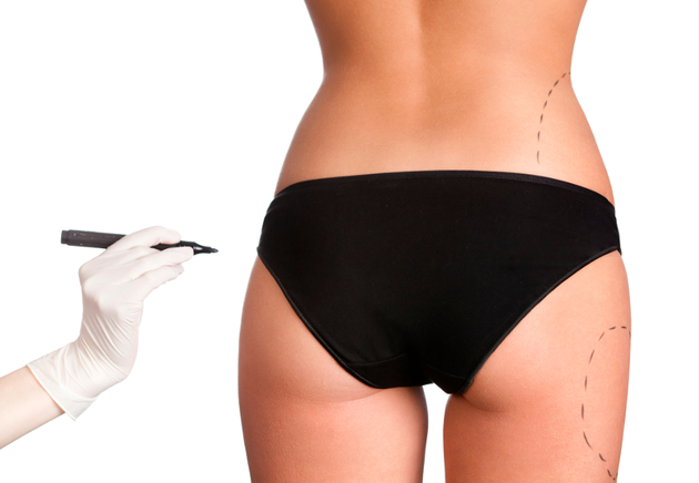 Pros and Cons of Butt Implants VS. Fat Injections