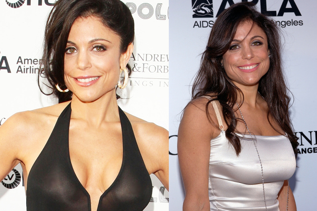 Bethenny Frankel Breast Implants