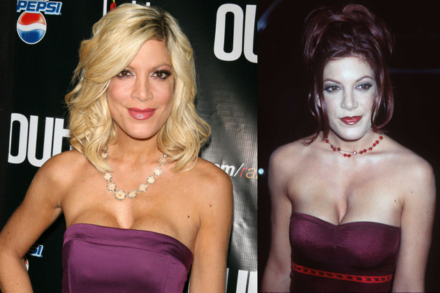 Tori Spelling Breast Implants