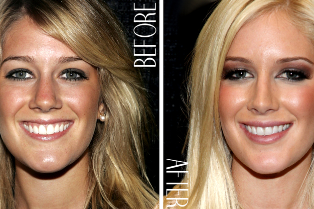 termometer's: 10 Most Amazing Celebrity Transformation In ...