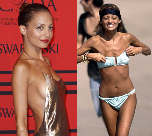 Nicole Richie Anorexia Relapse
