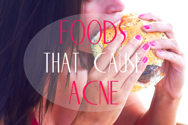 Foods That Cause Acne and Inflammation