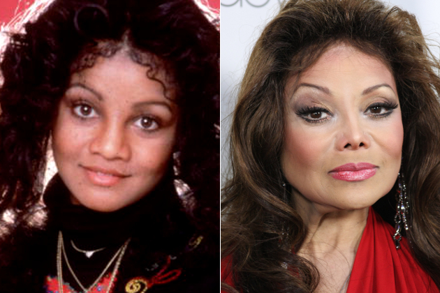 La Toya Jackson Nose Before And After