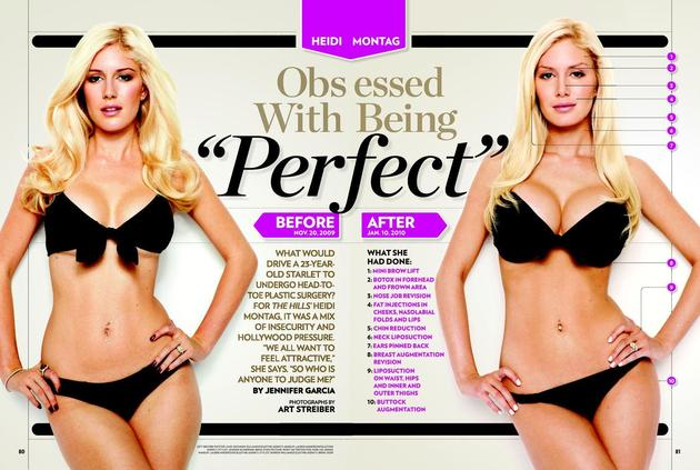 Heidi Montag Before After Surgeries