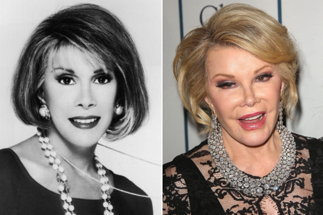 Joan Rivers Face Before And After