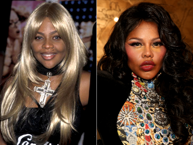 Lil Kim Face Before And After