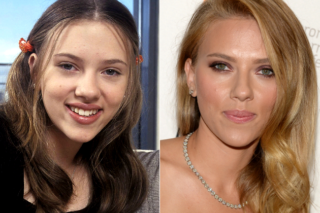 Scarlett Johansson Nose Before And After