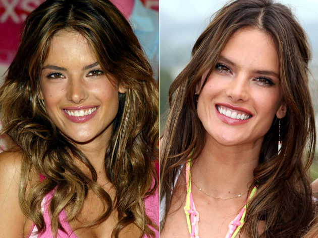 Alessandra Ambrosio Veneers Before And After