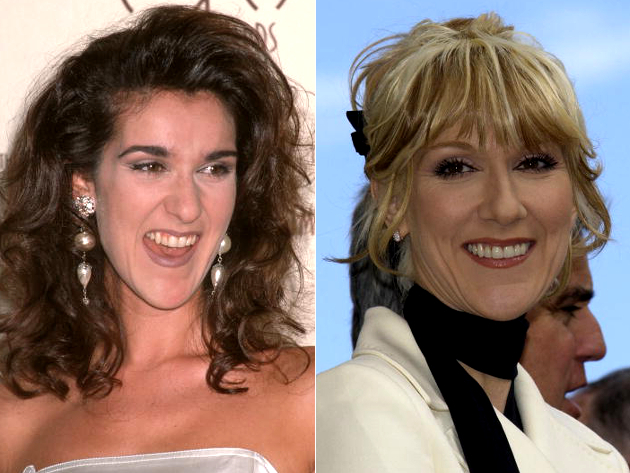 Celine Dion Veneers Before And After