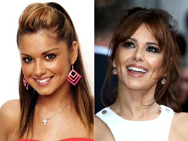 Cheryl Cole Veneers Before And After