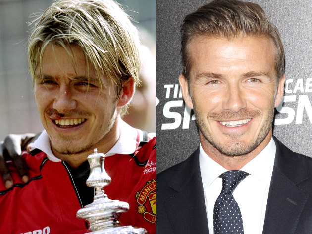 David Beckham Veneers Before And After
