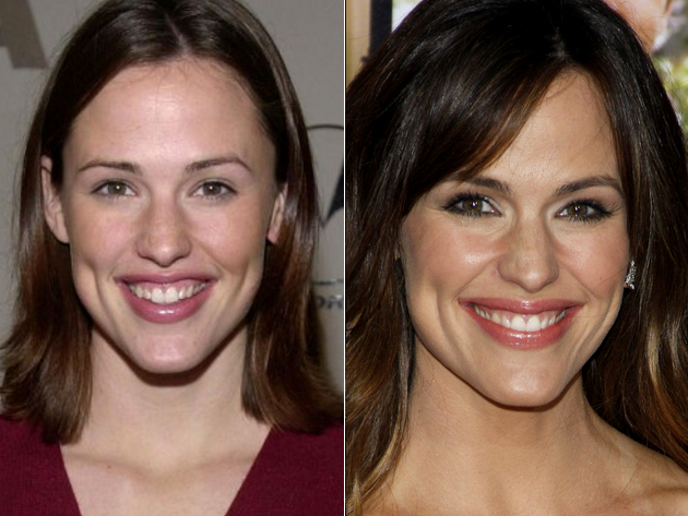 Jennifer Garner Veneers Before And After