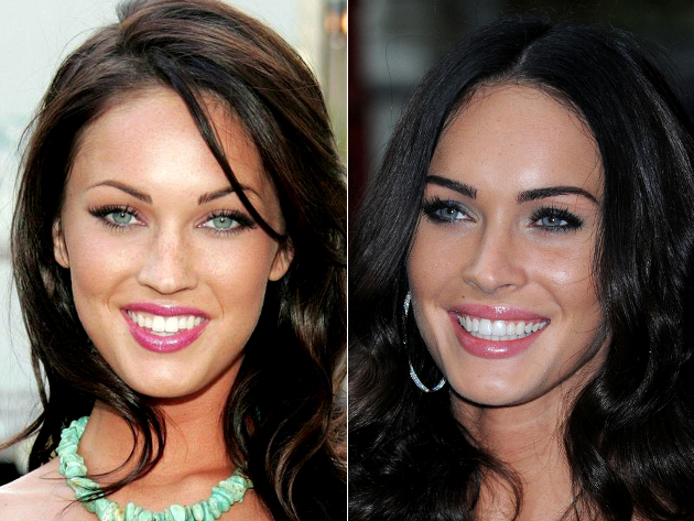 Megan Fox Veneers Before And After