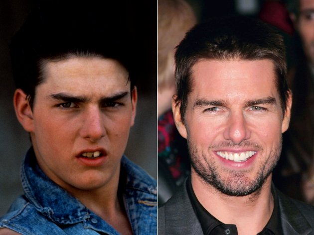 Tom Cruise Veneers Before And After