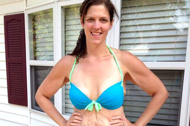 Shape to Publish Previously Rejected Weight Loss Bikini Photos