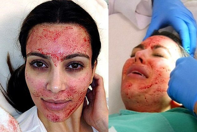 Blood Facial Kim Kardashian