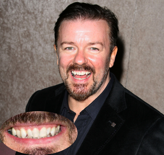 Ricky Gervais Teeth