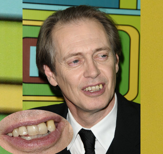 Steve Buscemi Teeth