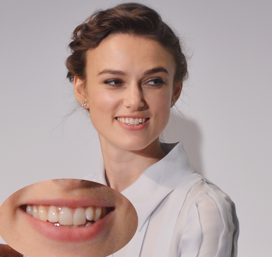Keira Knightley Teeth