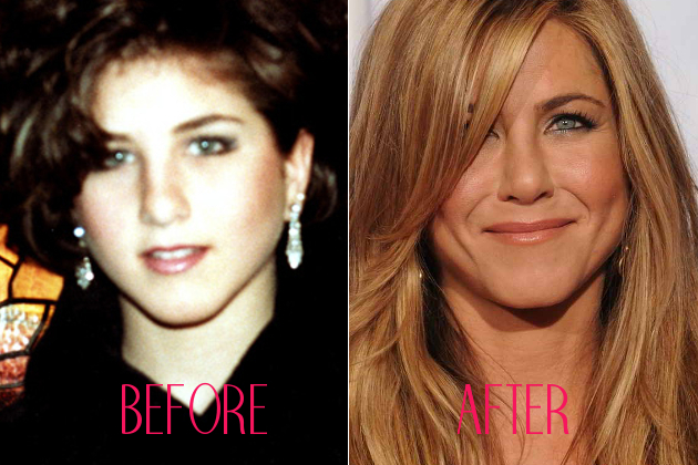 Jennifer Aniston Old Nose